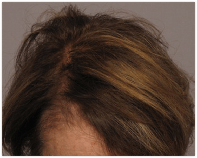 Female Patient After Neograft