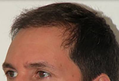 NeoGraft Patient Forehead After Treatment