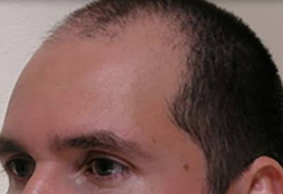 NeoGraft Patient Forehead Before Treatment