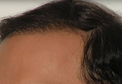 NeoGraft Patient Hairline After Treatment