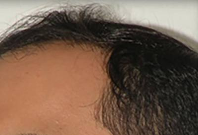 NeoGraft Patient Hairline Before Treatment