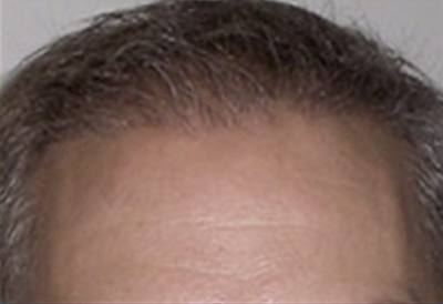 NeoGraft Patient Front Forehead After Treatment