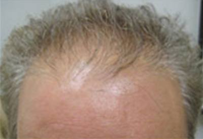 NeoGraft Patient Front Forehead Before Treatment