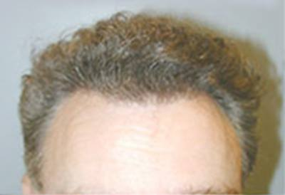 NeoGraft Patient After Treatment Lush Hair