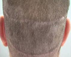 Linear Scar